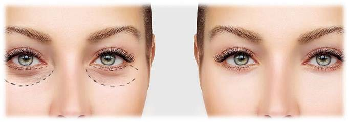 eyelid sugery turkey