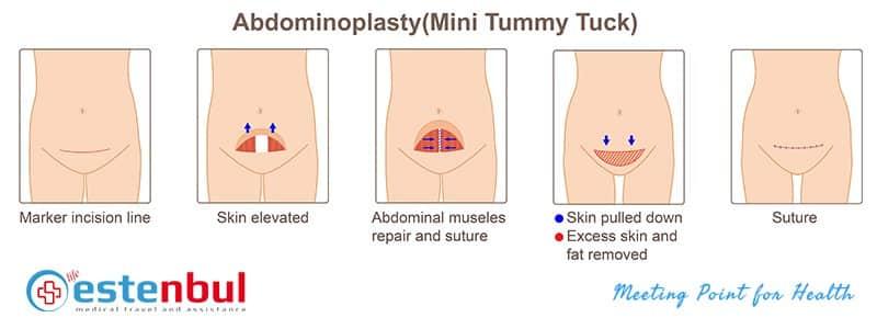 mini tummy tuck surgery in turkey