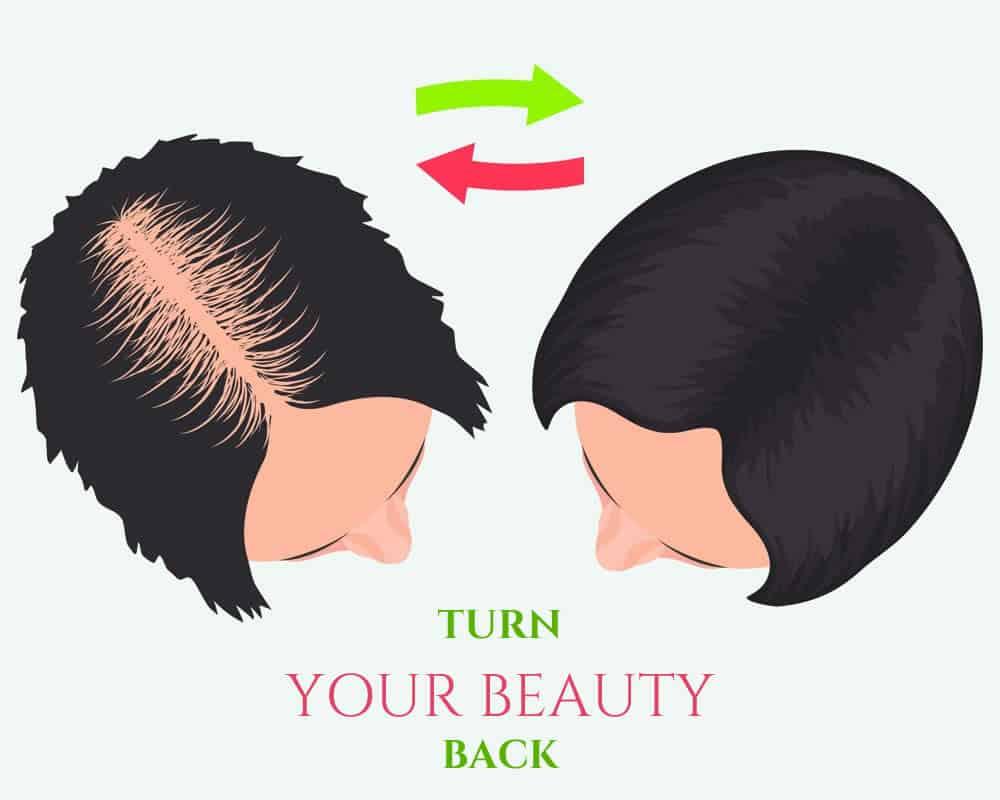 Tout Sur La Greffe De Cheveux DHI