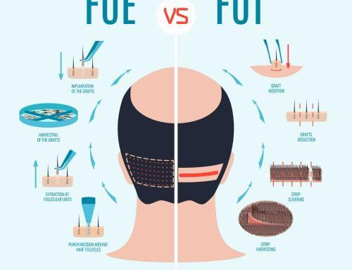 Как выбрать лучших хирургов по пересадке волос?