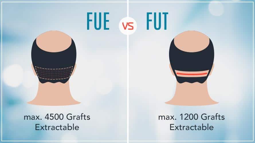 Méthodes populaires de greffe de cheveux