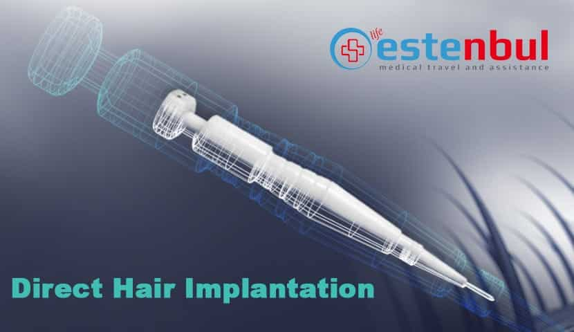 What Is Direct Hair Implantation?