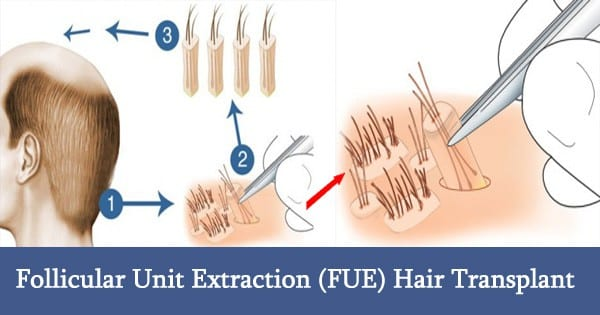 Achieving Fast Donor Healing in FUE Hair Transplant