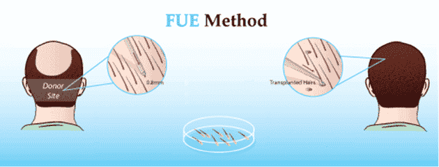 FUE (follicular unit extraction) What is FUE