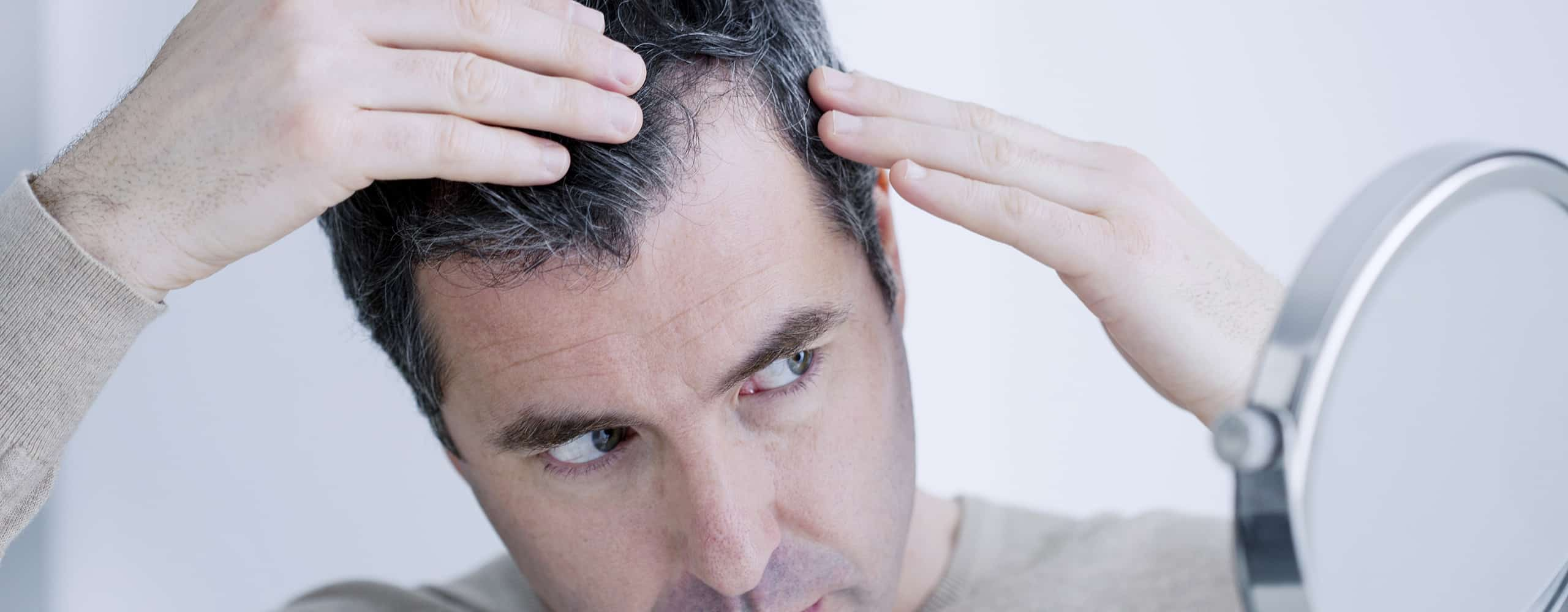 Hair Transplant: 10 Things to Consider Before You Decide