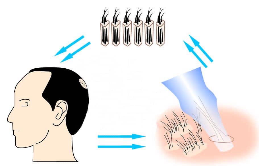Le Rétablissement A La Suit De Greffe De Cheveux