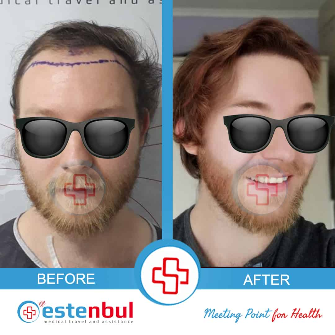 hair transplant before after13