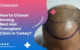 how to choose among best hair transplant clinic in turkey