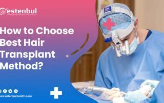 how to choose best hair transplant method
