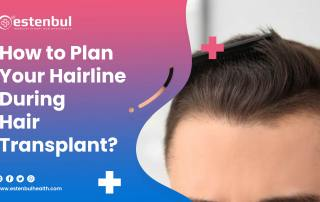 How to Plan Your Hairline During Hair Transplant?