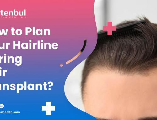 Saç Ekimi Sırasında Saç Çizginizi Nasıl Planlayabilirsiniz?