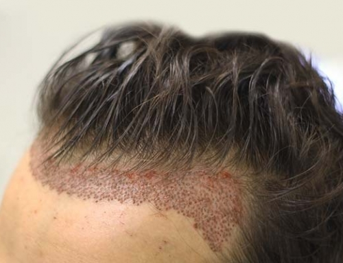 How to Have Natural Hair Transplant?