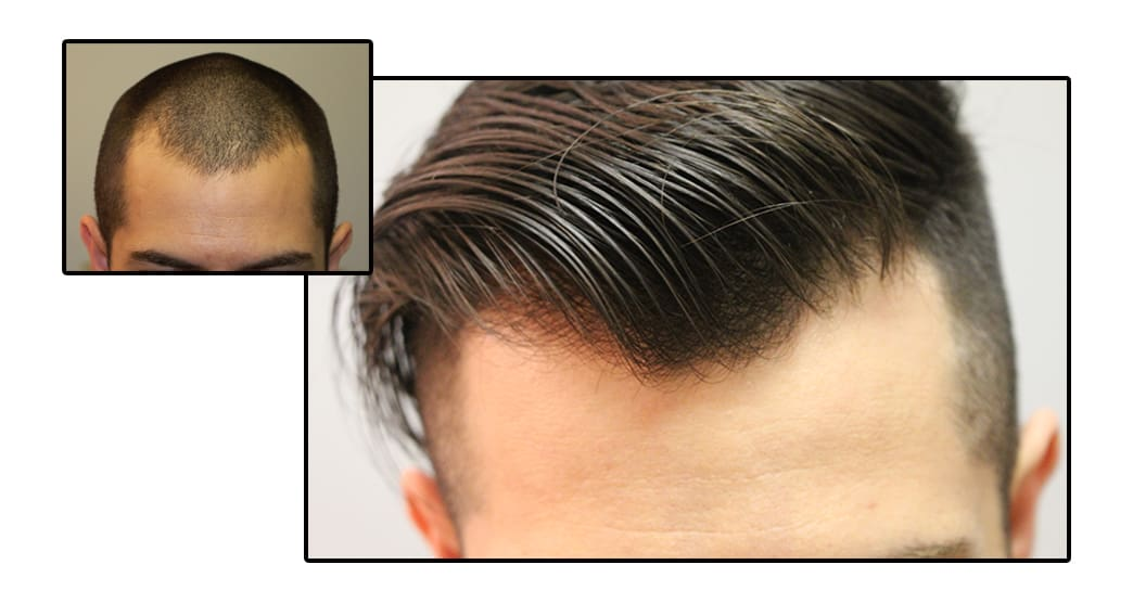 hair implant