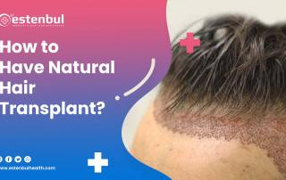 how to have natural hair transplant