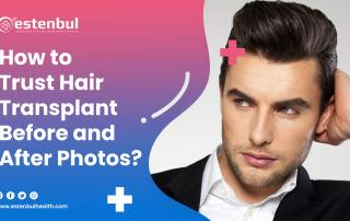how to trust hair transplant before and after photos