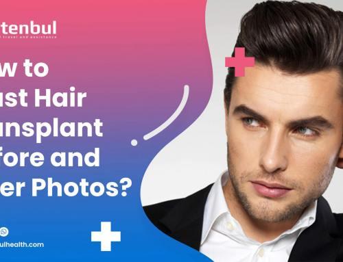 Saç Ekimi Öncesi Sonrası Fotoğraflara Nasıl Güvenebiliriz?