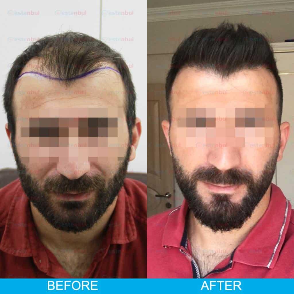 hair transplant result turkey