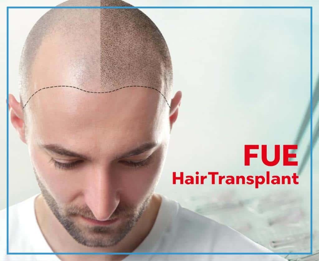 Fue Hair Transplant Istanbul Turkey