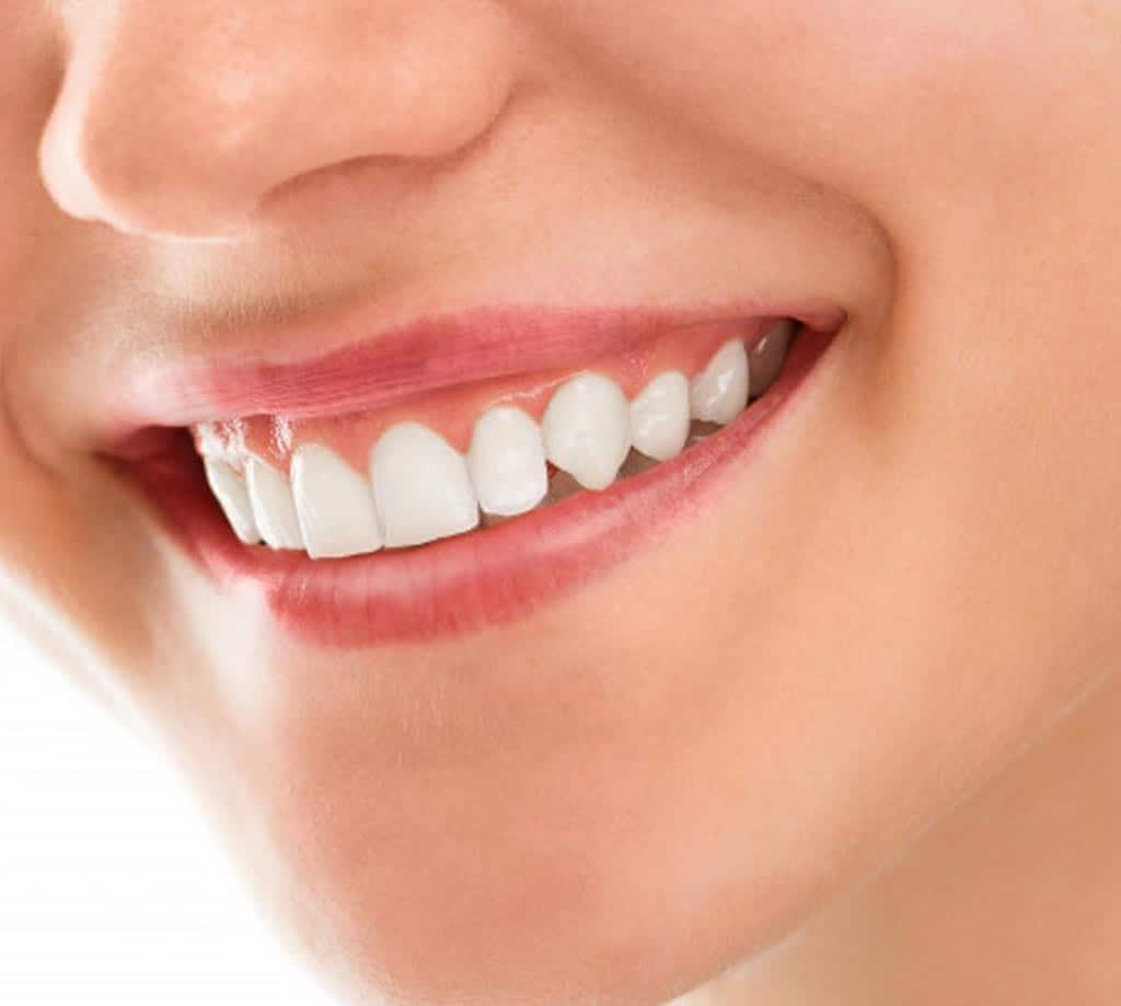 Dental Crowns in Turkey Istanbul