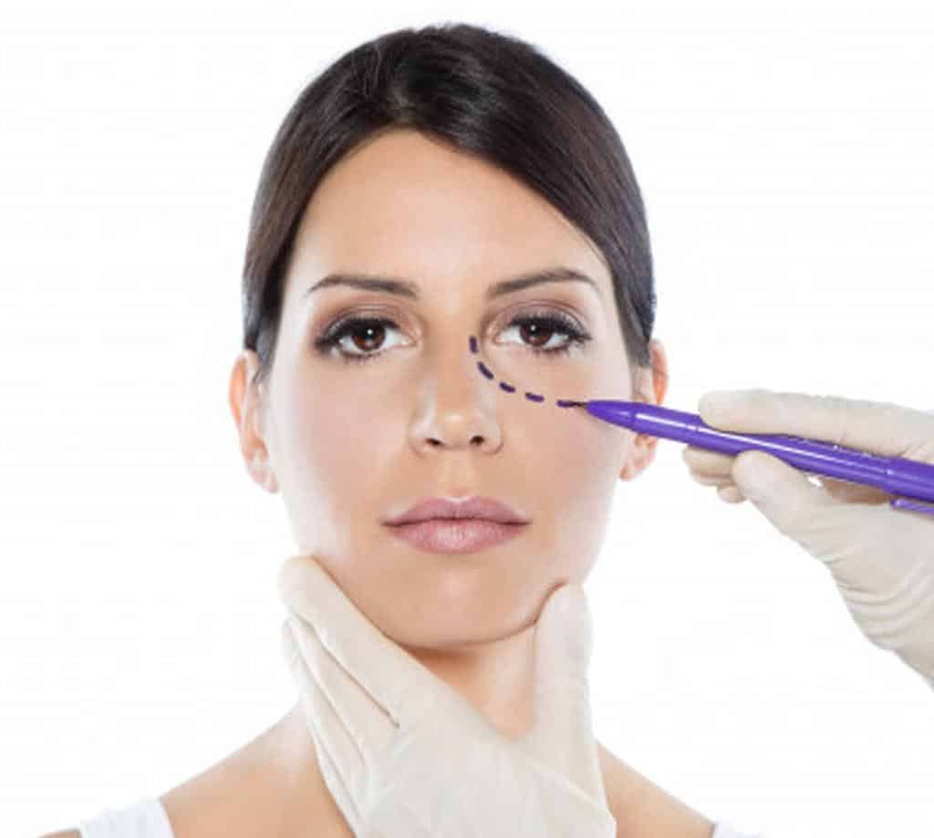 Eyelid Surgery in Turkey Istanbul