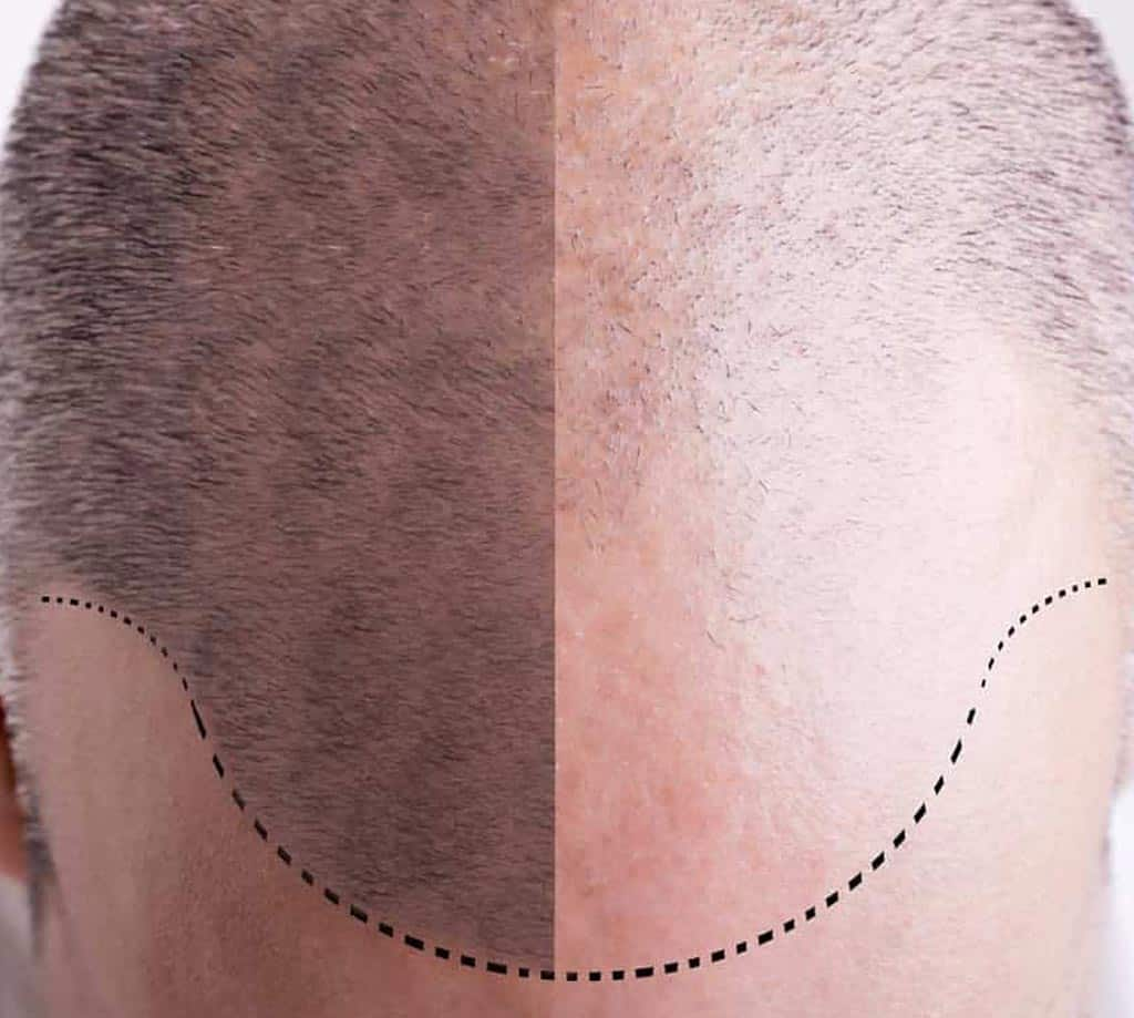 FUE Hair Trabsplant | Turkey İstanbul