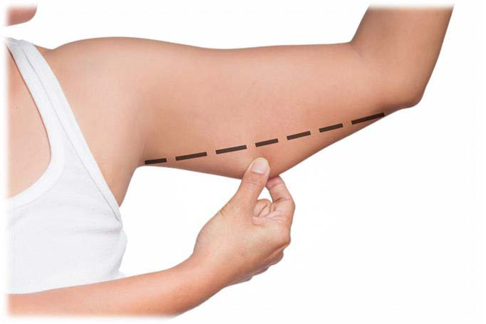 Arm Lift in Turkey   Plastic Surgery