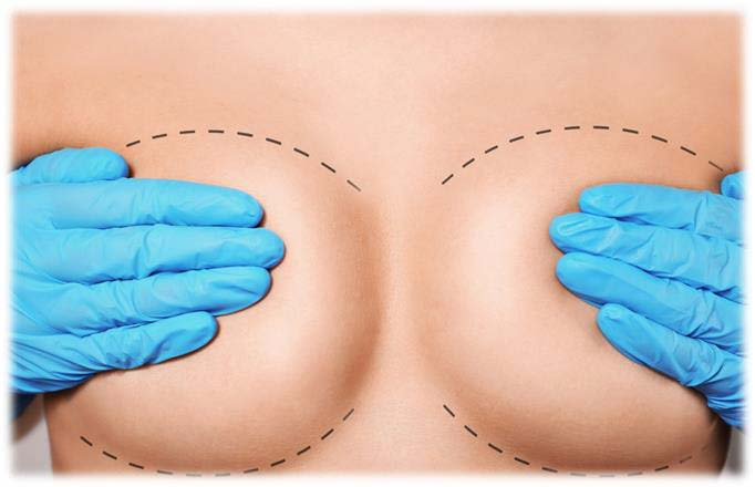 Breast Reduction | Plastic Surgery Estenbul Health