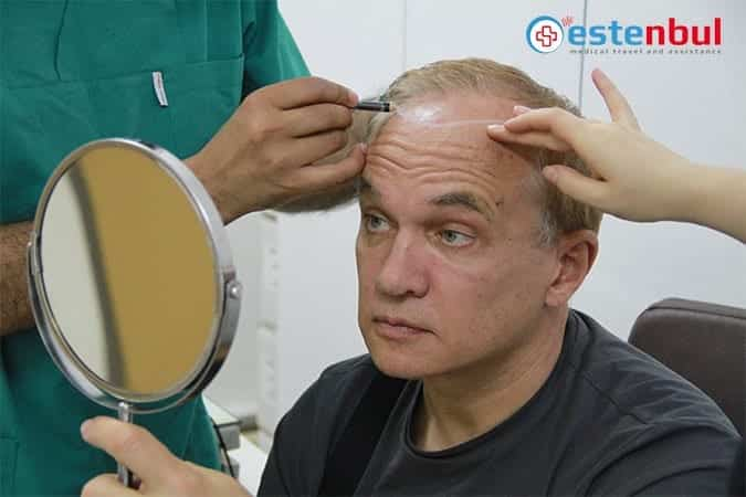 How Much Does Hair Transplant Turkey Cost?   Hair Transplant in Turkey