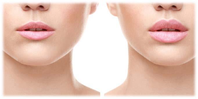 Lip Lift in Turkey | Plastic Surgery