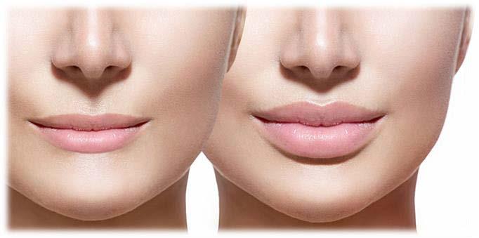 Plastic Surgery | Lip Lift in Turkey Istanbul