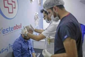 Greffe de Cheveux-Turquie-Istanbul