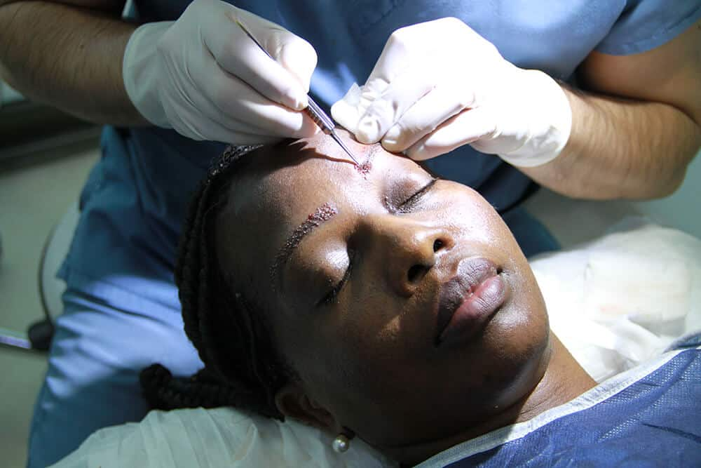 eyebrow transplant process