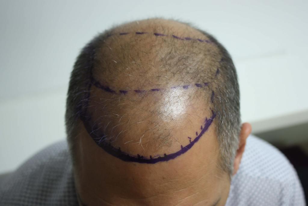 fue hair transplant process