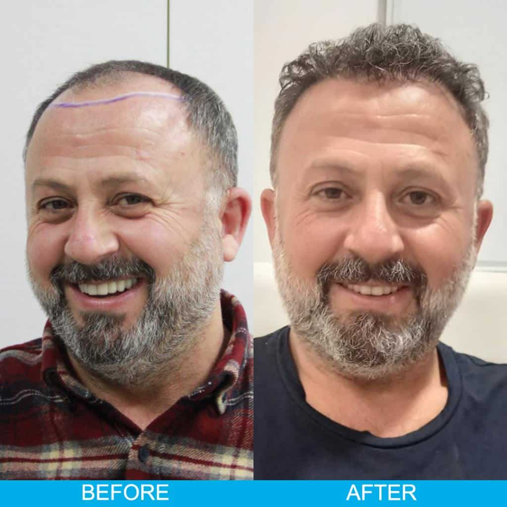 hair transplant before after result 70
