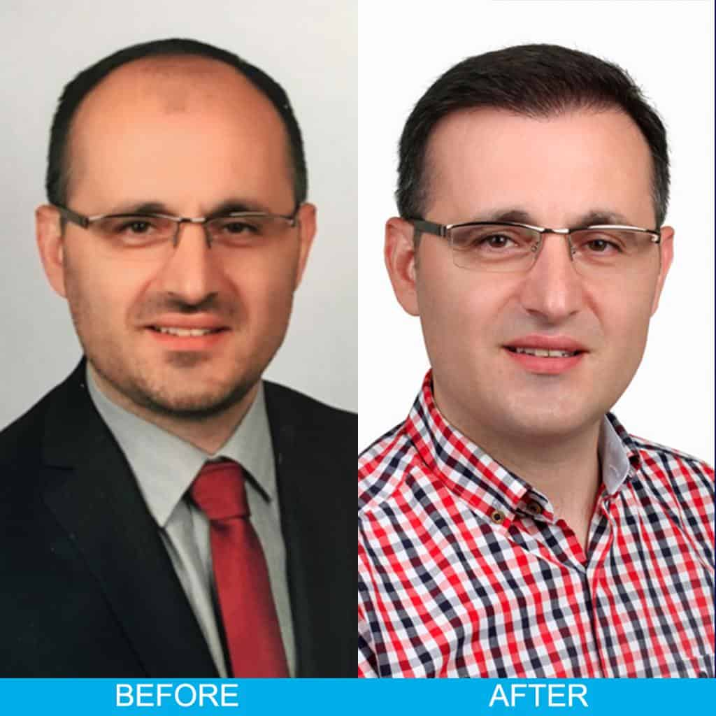 hair transplant before after result 72