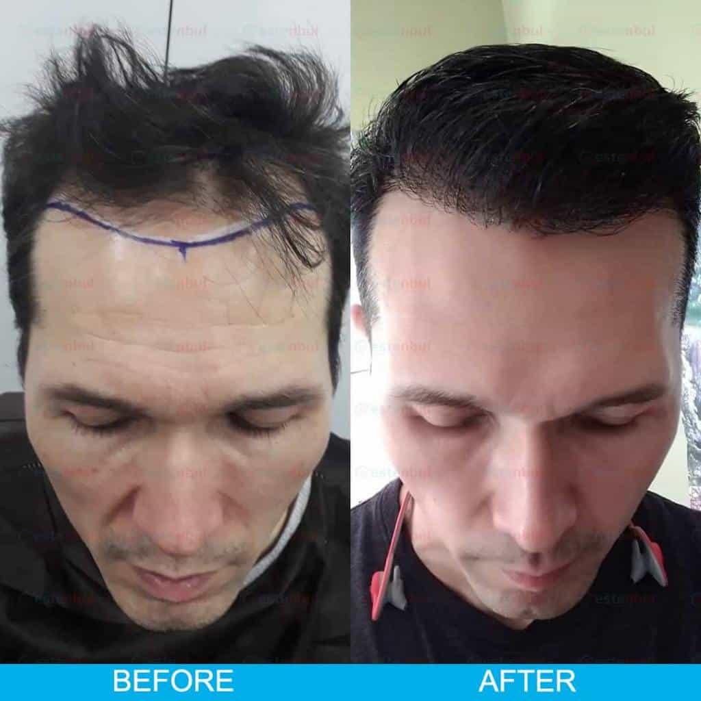 résultat de greffe de cheveux turquie