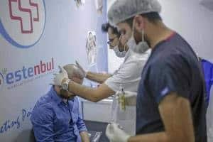 saç ekimi türkiye istanbul