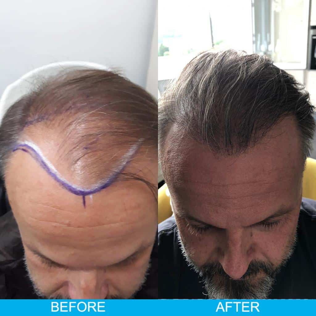hair transplant before after result 74