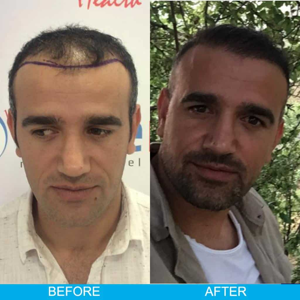 hair transplant before after result 75