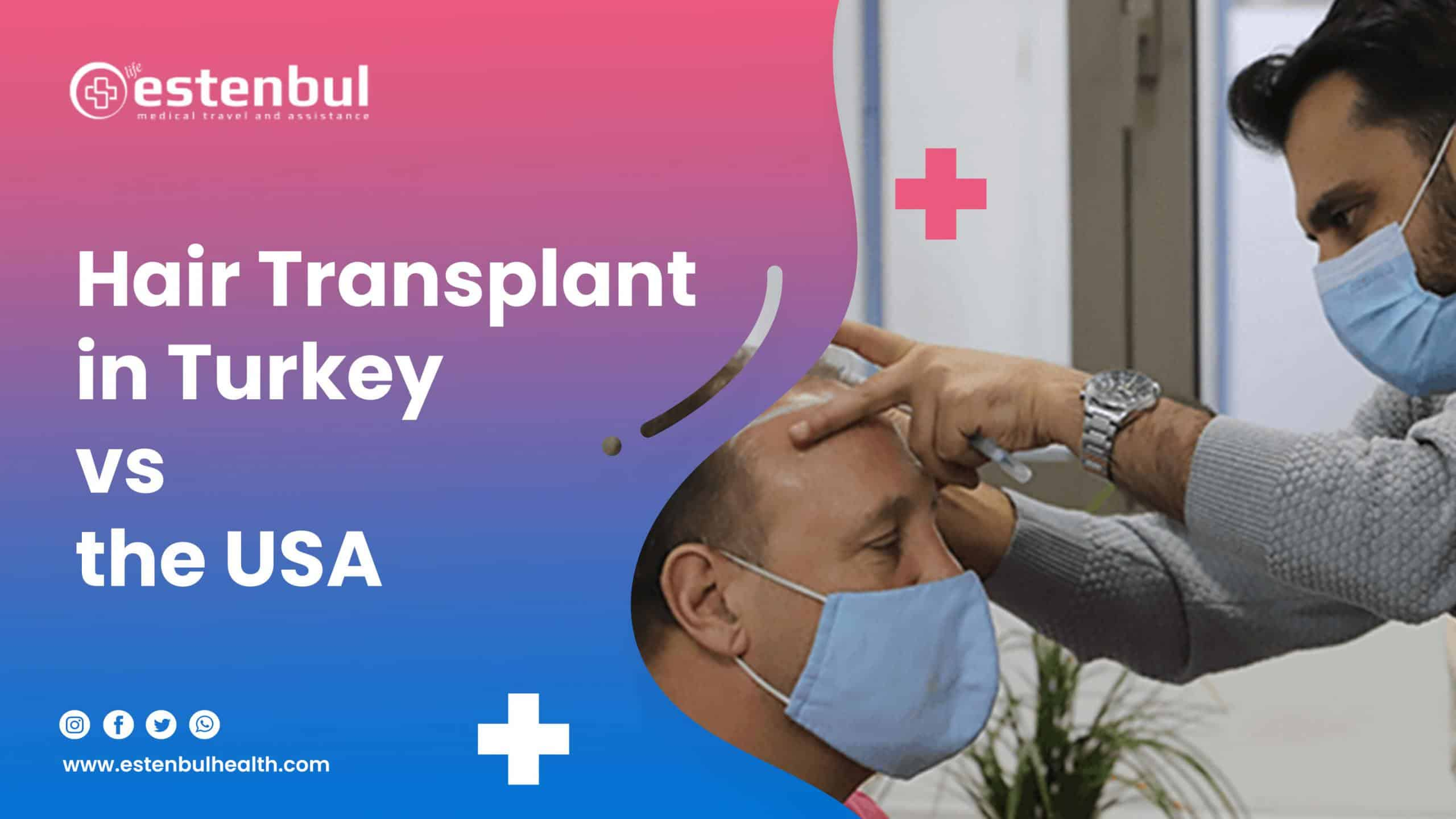hair transplant in turkey vs usa