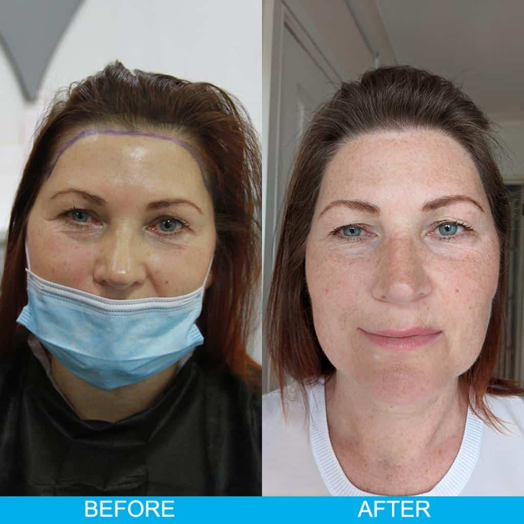 hair transplant woman before after result