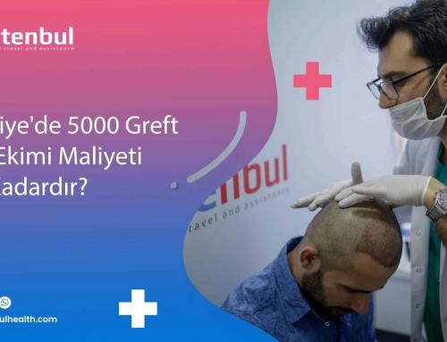 Türkiye'de 5000 Greft Saç Ekimi Maliyeti Ne Kadardır?