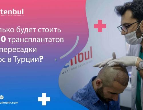 Сколько будет стоить 5000 трансплантатов для пересадки волос в Турции?