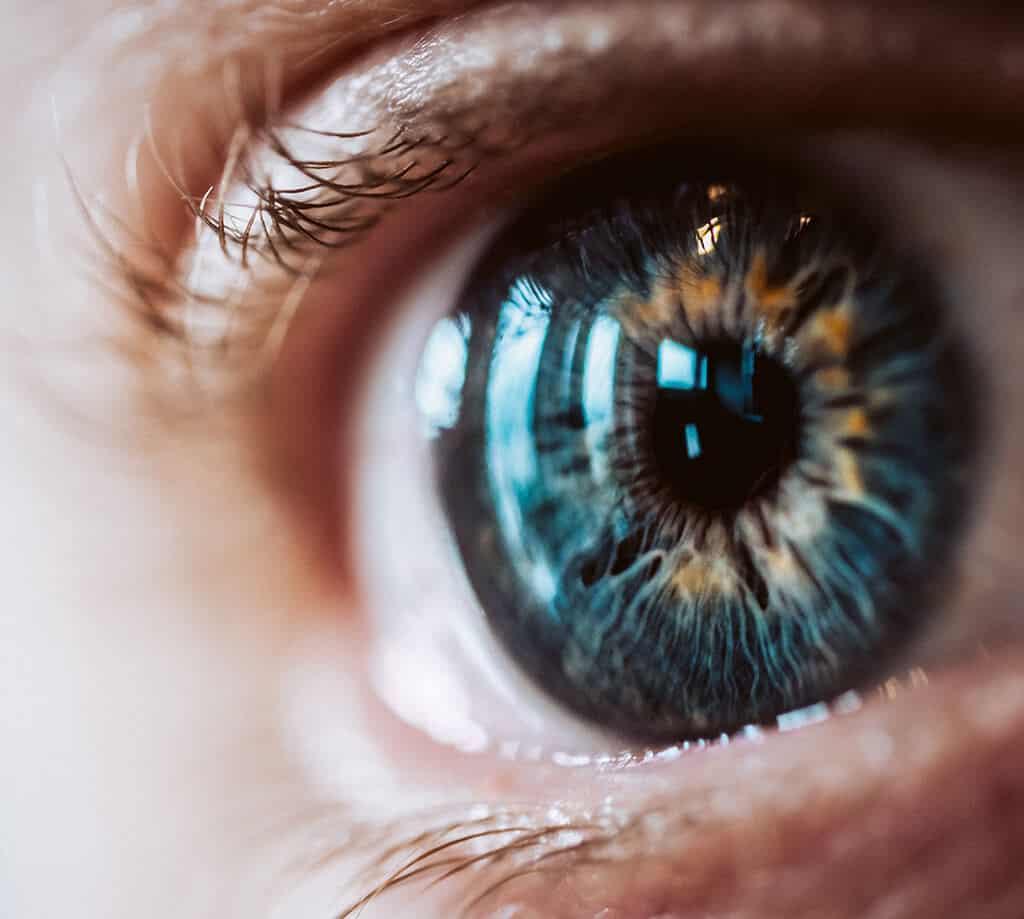 Cataract Surgery in turkey