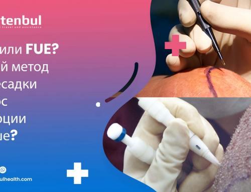 DHI или FUE? Какой метод пересадки волос лучше?