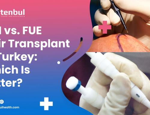 DHI vs FUE Hair Transplant in Turkey: Which Is Better?