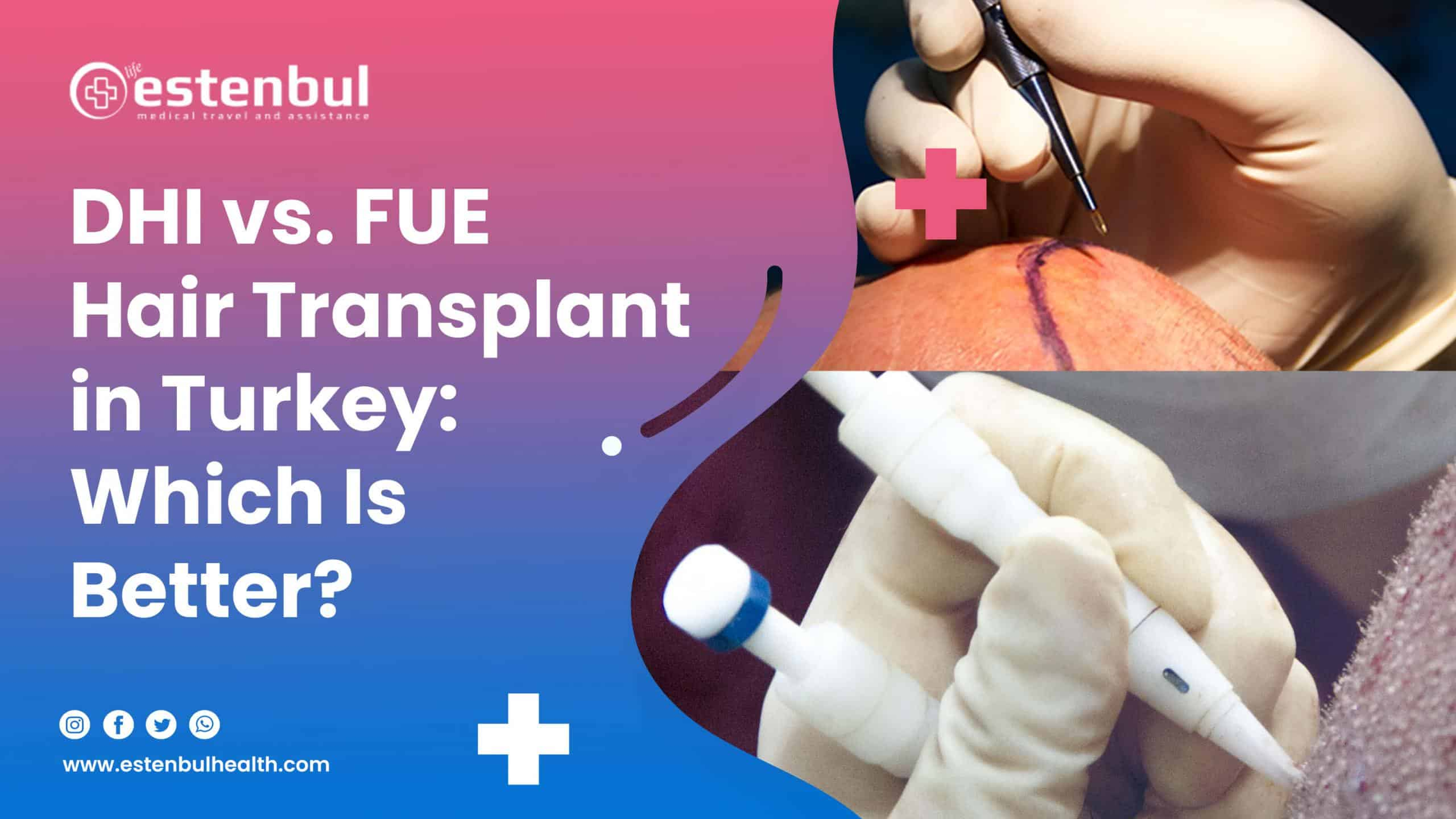 dhi vs. fue hair transplant in turkey which is better