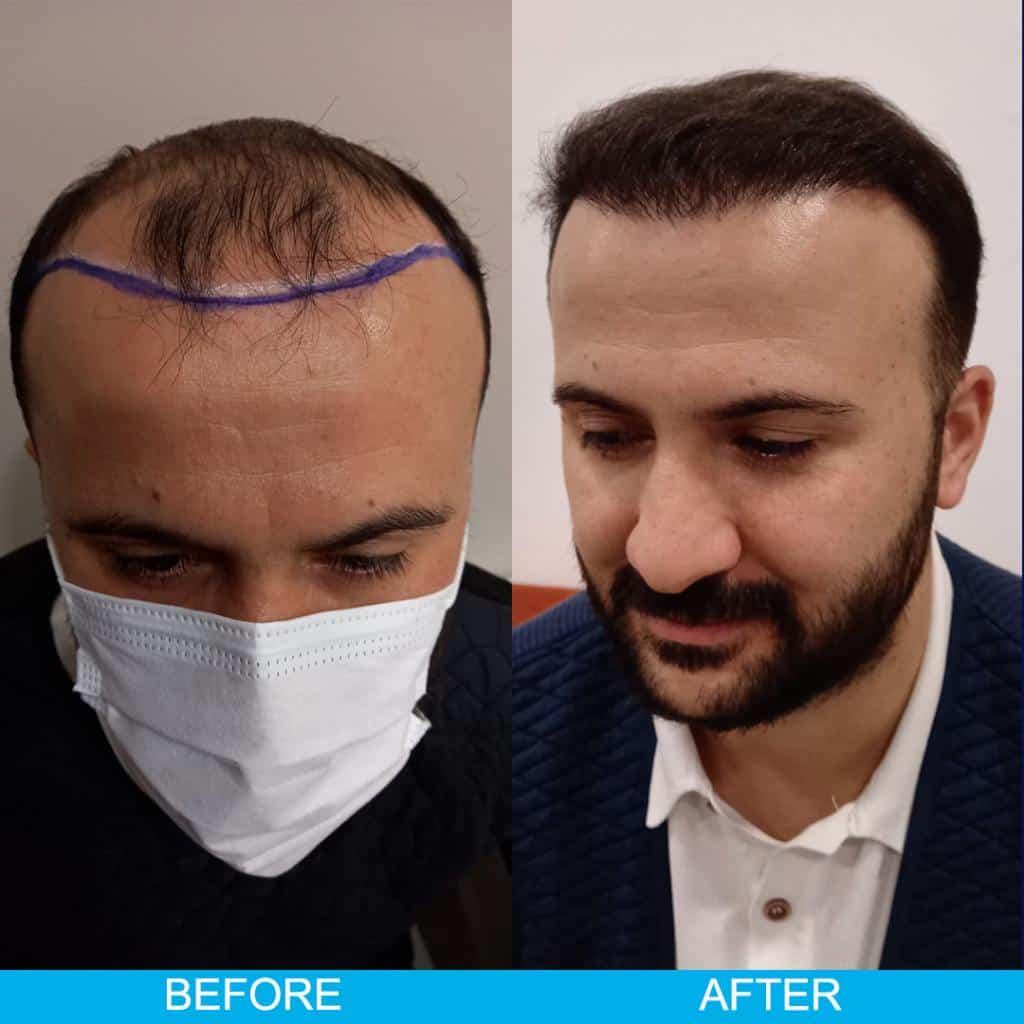 hair transplan turkey before after 29