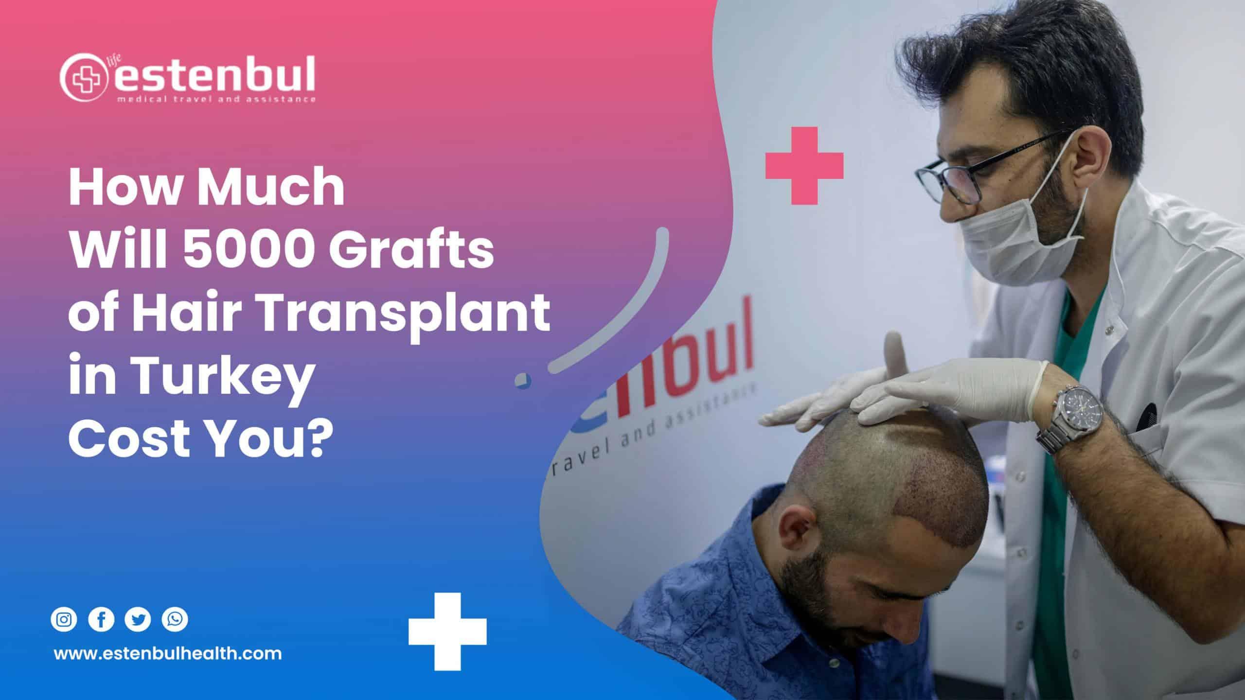 hair transplant in turkey cost